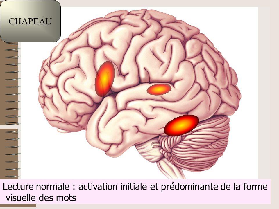 F.Lahalle INS-HEA 60 av. des Landes 92150 Suresnes 4 Lecture normale : activation initiale et prédominante de la forme visuelle des mots CHAPEAU