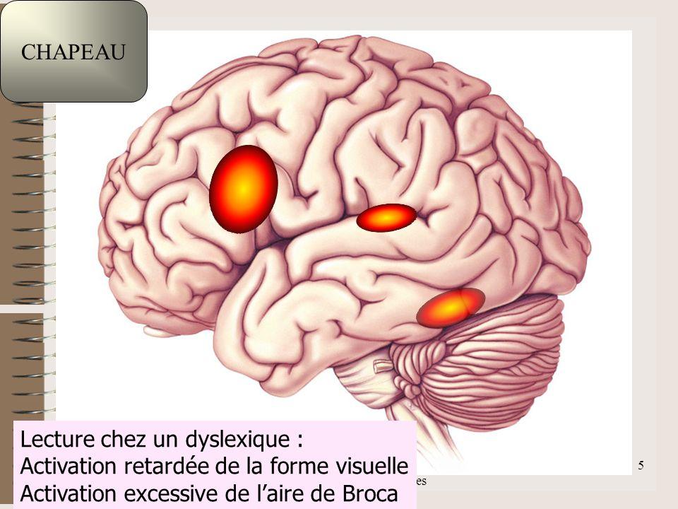 F.Lahalle INS-HEA 60 av. des Landes 92150 Suresnes 5 CHAPEAU Lecture chez un dyslexique : Activation retardée de la forme visuelle Activation excessiv