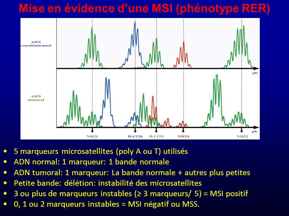 Mise en évidence dune MSI (phénotype RER) 5 marqueurs microsatellites (poly A ou T) utilisés ADN normal: 1 marqueur: 1 bande normale ADN tumoral: 1 ma