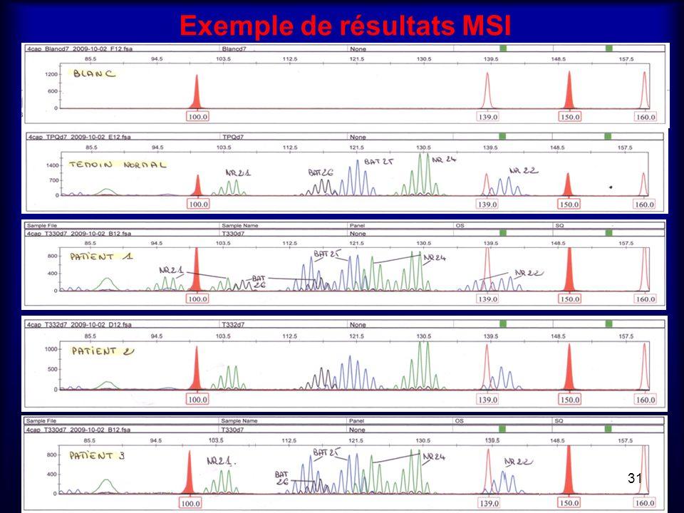 Exemple de résultats MSI 31