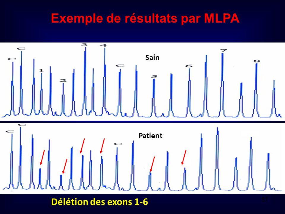 Exemple de résultats par MLPA Délétion des exons 1-6 Sain Patient 37