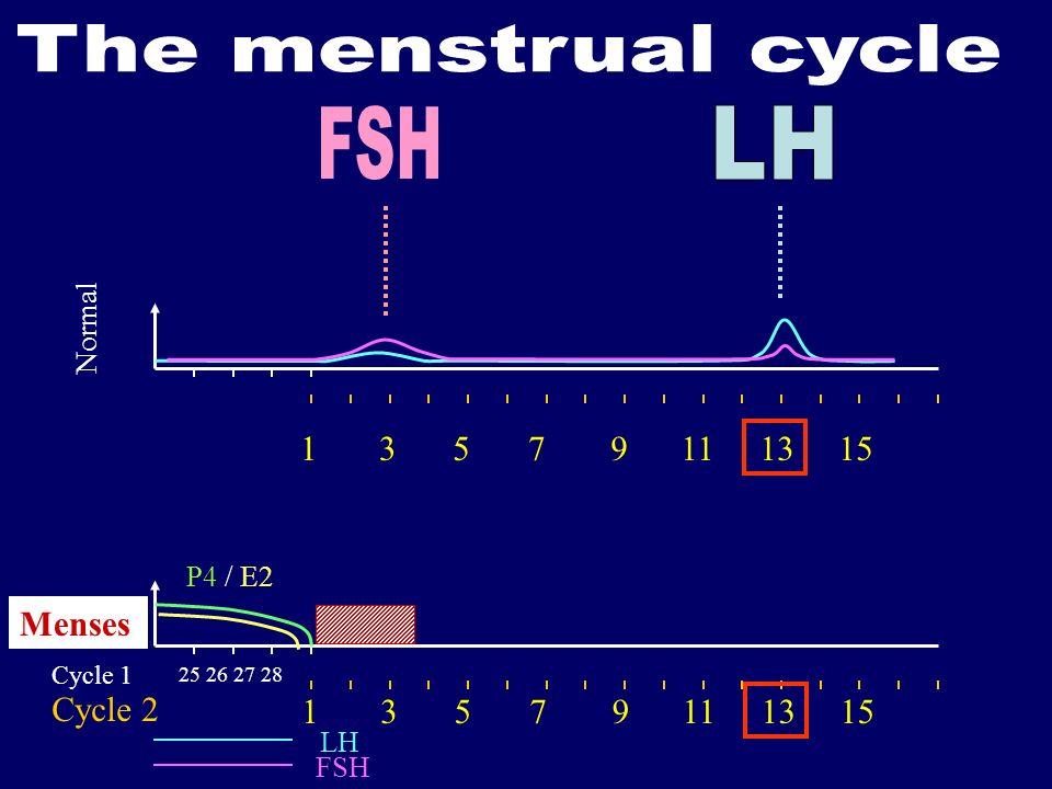 25 26 27 28 Cycle 1 Cycle 2 LH FSH P4 / E2 Menses Normal 13579111315 13579111315
