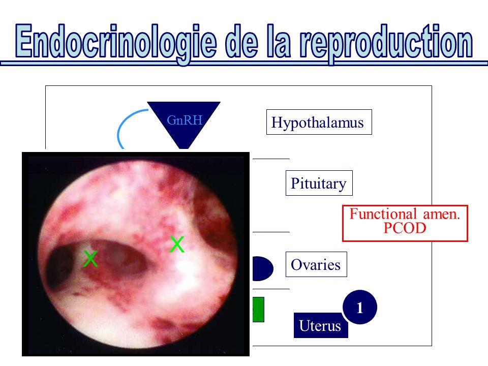 Uterus Ovaries Pituitary E2 P4 FSHLH FSH/LH GnRH Asherman Hypothalamus 1 Functional amen. PCOD