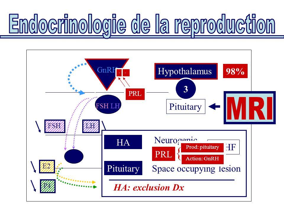 Pituitary Hypothalamus FSH/LH GnRH Uterus Ovaries E2 P4 FSHLH HA Neurogenic PRL PituitarySpace occupying lesion HA: exclusion Dx No HF 3 PRL - - Prod: