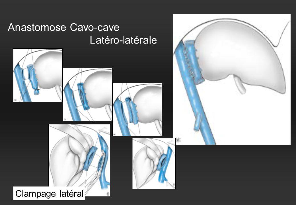Anastomose Cavo-cave Latéro-latérale Clampage latéral