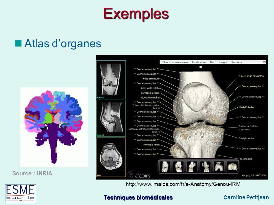 Techniques biomédicales Caroline Petitjean Exemples Atlas dorganes Source : INRIA http://www.imaios.com/fr/e-Anatomy/Genou-IRM