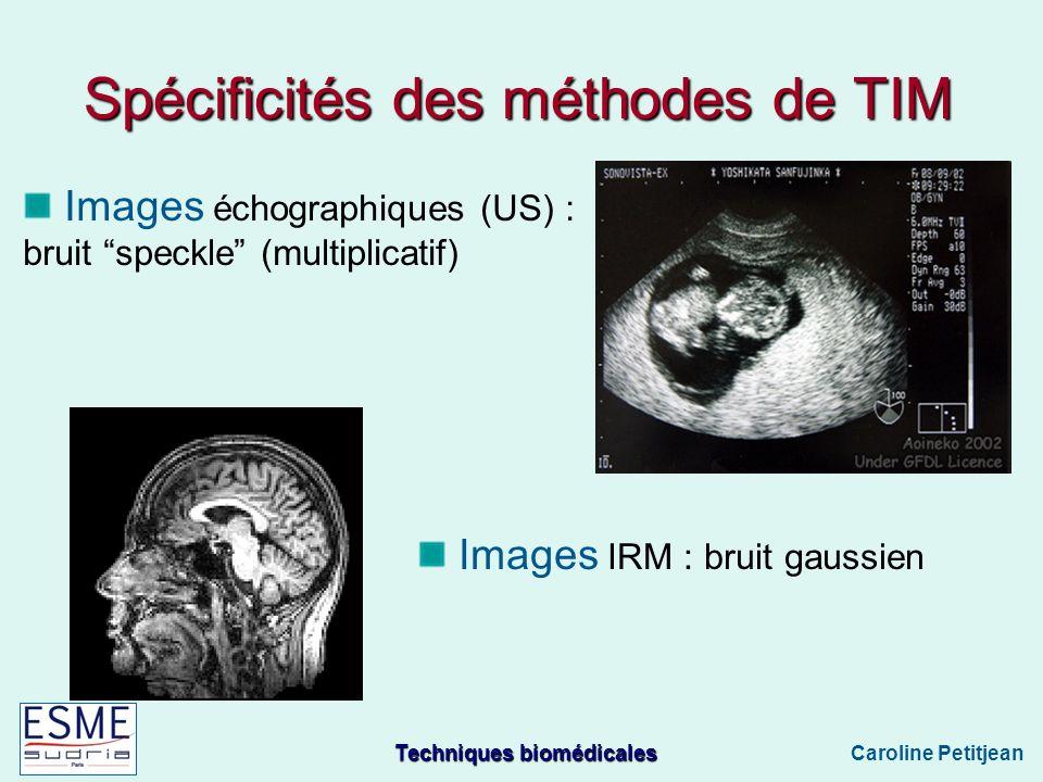 Techniques biomédicales Caroline Petitjean Images échographiques (US) : bruit speckle (multiplicatif) Spécificités des méthodes de TIM Images IRM : bruit gaussien
