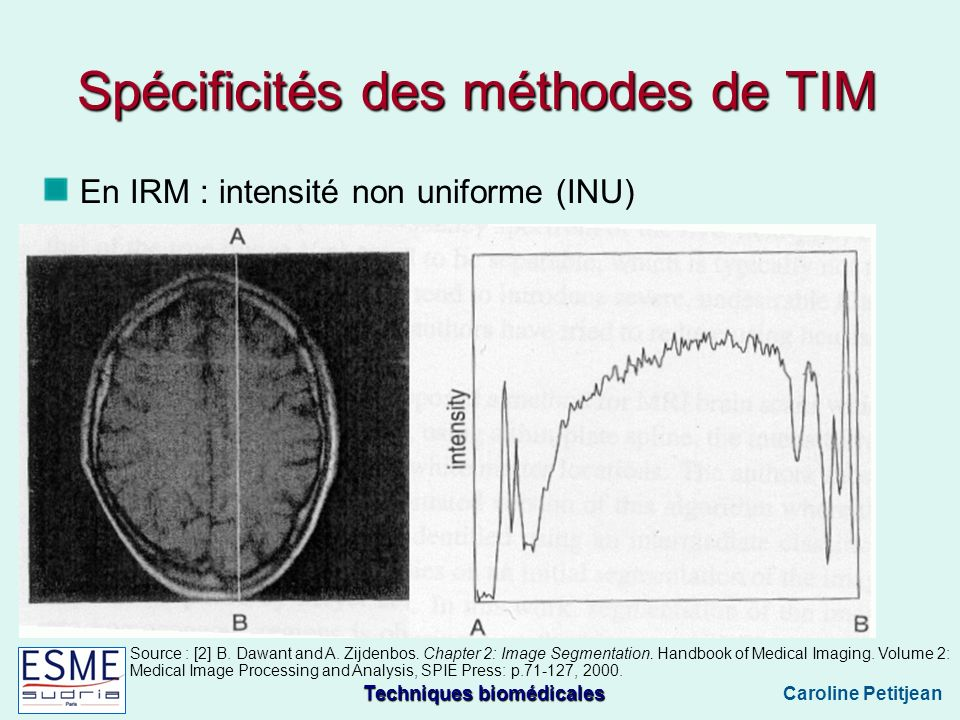 Techniques biomédicales Caroline Petitjean En IRM : intensité non uniforme (INU) Source : [2] B. Dawant and A. Zijdenbos. Chapter 2: Image Segmentatio