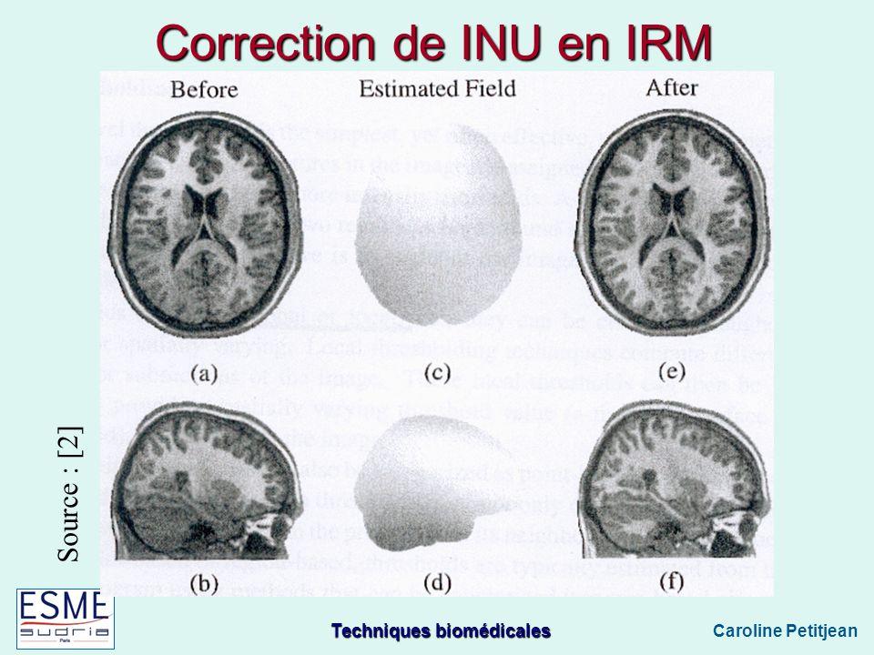 Techniques biomédicales Caroline Petitjean Correction de INU en IRM Source : [2]