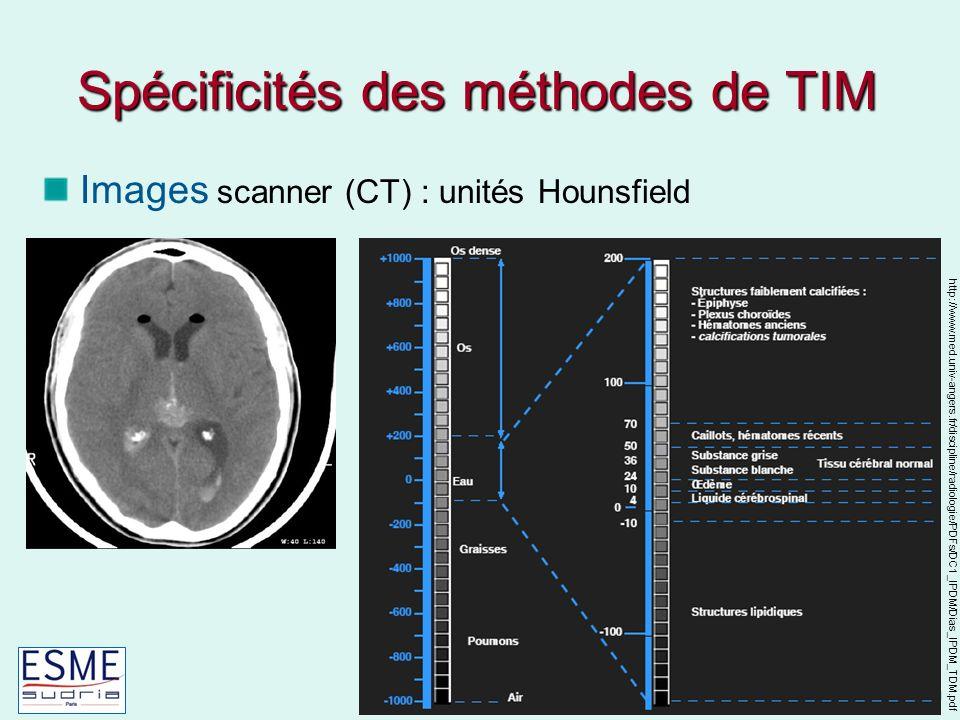 Techniques biomédicales Caroline Petitjean Images scanner (CT) : unités Hounsfield Spécificités des méthodes de TIM http://www.med.univ-angers.fr/discipline/radiologie/PDFs/DC1_IPDM/Dias_IPDM_TDM.pdf