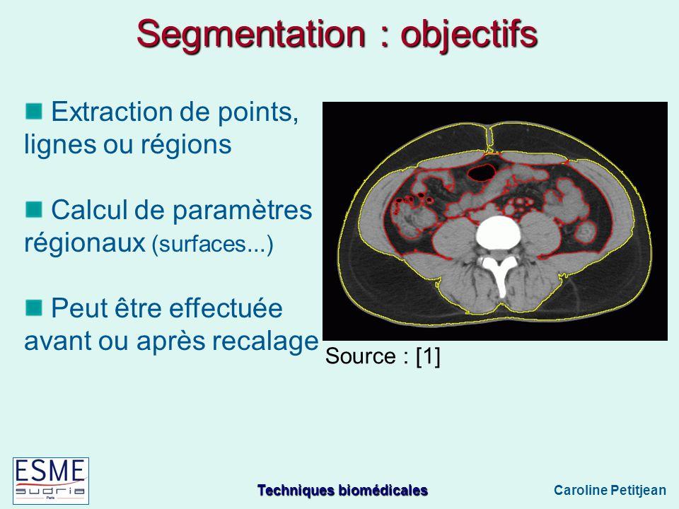 Techniques biomédicales Caroline Petitjean Segmentation : objectifs Extraction de points, lignes ou régions Calcul de paramètres régionaux (surfaces...) Peut être effectuée avant ou après recalage Source : [1]