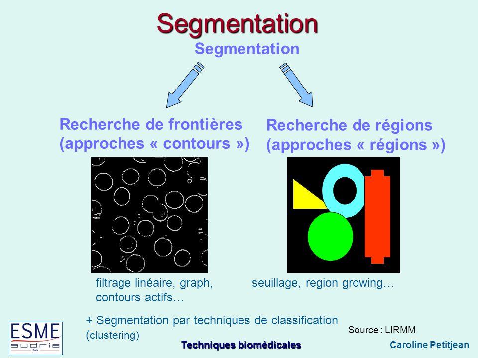 Techniques biomédicales Caroline Petitjean Segmentation Segmentation Recherche de régions (approches « régions ») Recherche de frontières (approches « contours ») Source : LIRMM seuillage, region growing… filtrage linéaire, graph, contours actifs… + Segmentation par techniques de classification ( clustering)