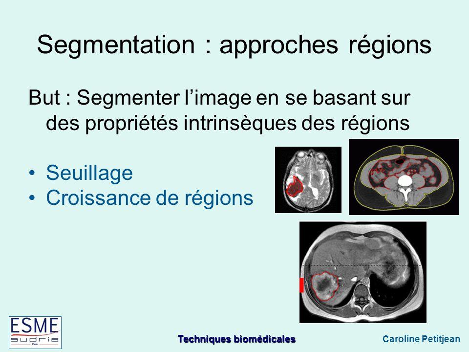 Techniques biomédicales Caroline Petitjean Segmentation : approches régions But : Segmenter limage en se basant sur des propriétés intrinsèques des régions Seuillage Croissance de régions