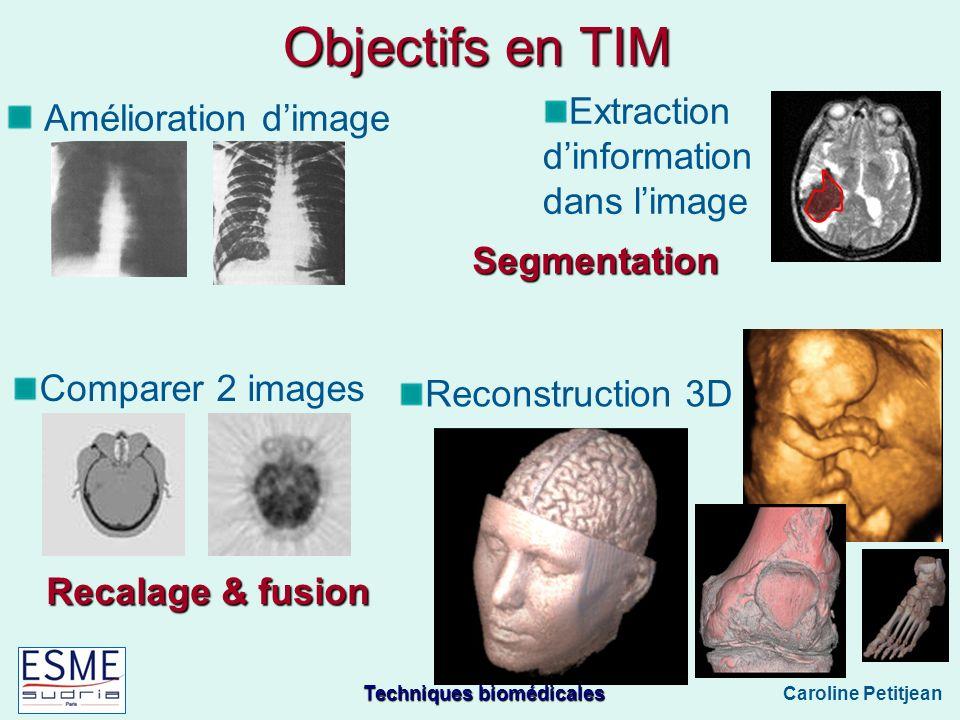Techniques biomédicales Caroline Petitjean Objectifs en TIM Amélioration dimage Segmentation Recalage & fusion Extraction dinformation dans limage Comparer 2 images Reconstruction 3D