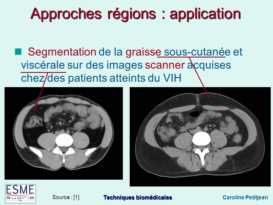 Techniques biomédicales Caroline Petitjean Approches régions : application Segmentation de la graisse sous-cutanée et viscérale sur des images scanner acquises chez des patients atteints du VIH Source : [1]