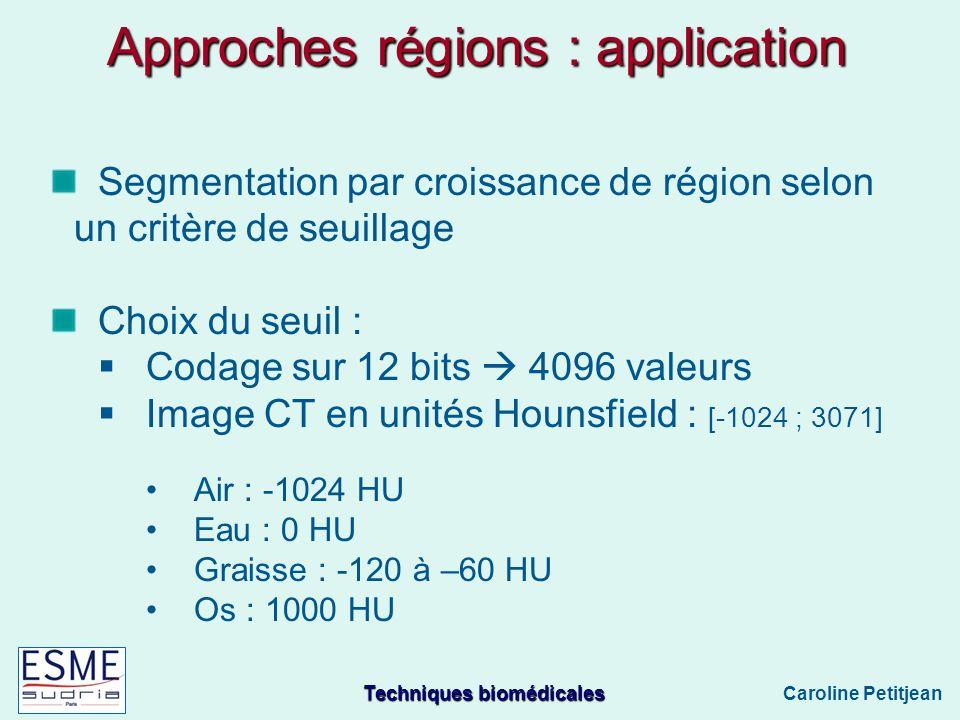 Techniques biomédicales Caroline Petitjean Approches régions : application Segmentation par croissance de région selon un critère de seuillage Choix du seuil : Codage sur 12 bits 4096 valeurs Image CT en unités Hounsfield : [-1024 ; 3071] Air : -1024 HU Eau : 0 HU Graisse : -120 à –60 HU Os : 1000 HU