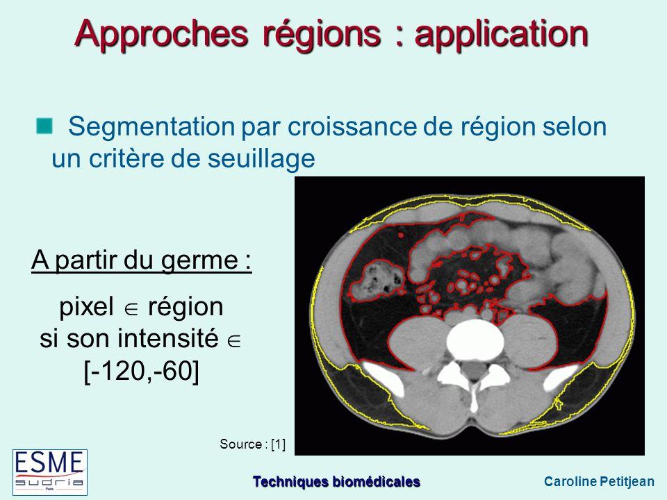 Techniques biomédicales Caroline Petitjean Approches régions : application Segmentation par croissance de région selon un critère de seuillage A partir du germe : pixel région si son intensité [-120,-60] Source : [1]