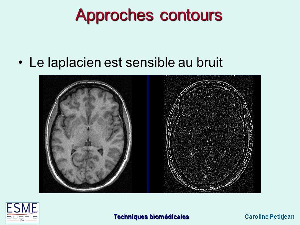 Techniques biomédicales Caroline Petitjean Le laplacien est sensible au bruit Approches contours