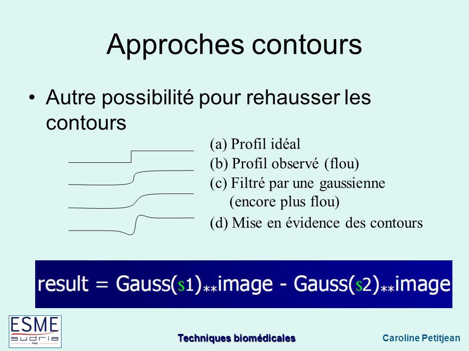 Techniques biomédicales Caroline Petitjean Approches contours Autre possibilité pour rehausser les contours (a) Profil idéal (b) Profil observé (flou) (c) Filtré par une gaussienne (encore plus flou) (d) Mise en évidence des contours