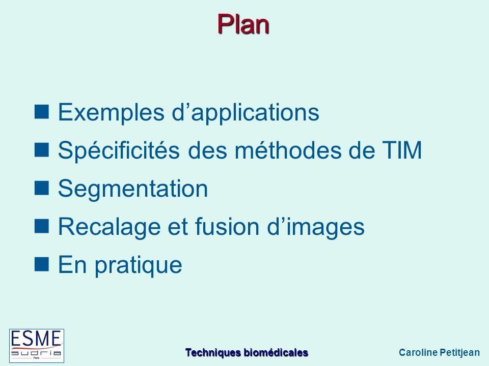 Techniques biomédicales Caroline Petitjean Plan Exemples dapplications Spécificités des méthodes de TIM Segmentation Recalage et fusion dimages En pratique