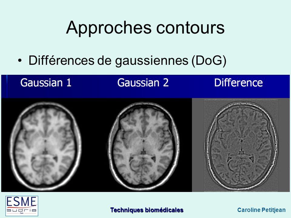 Techniques biomédicales Caroline Petitjean Approches contours Différences de gaussiennes (DoG)