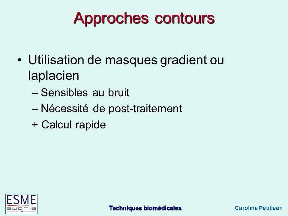 Techniques biomédicales Caroline Petitjean Approches contours Utilisation de masques gradient ou laplacien –Sensibles au bruit –Nécessité de post-traitement + Calcul rapide