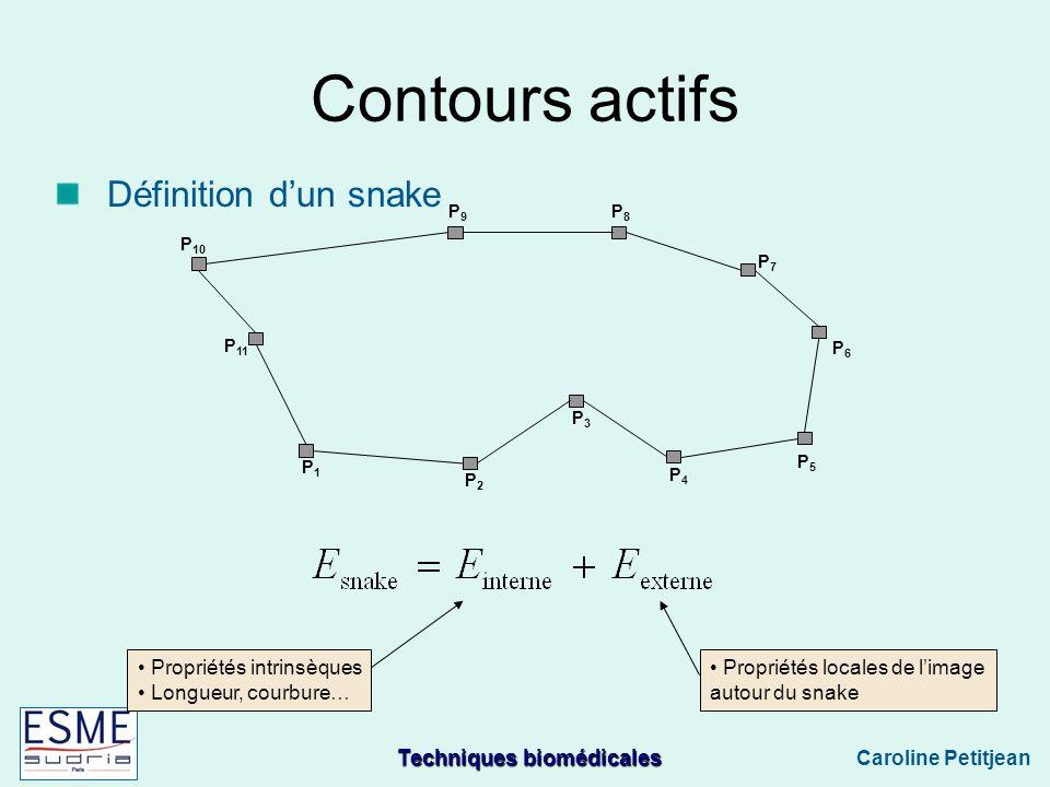 Techniques biomédicales Caroline Petitjean P1P1 P2P2 P3P3 P4P4 P5P5 P6P6 P7P7 P8P8 P9P9 P 10 P 11 Propriétés intrinsèques Longueur, courbure… Propriétés locales de limage autour du snake Contours actifs Définition dun snake