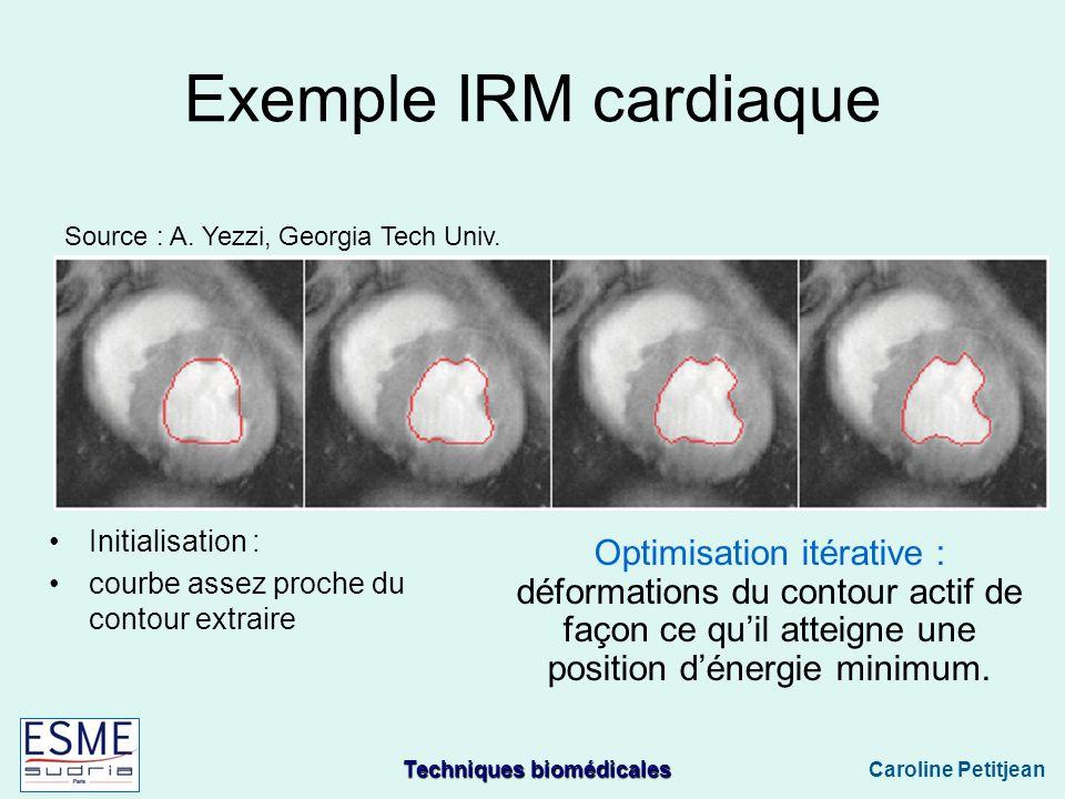 Techniques biomédicales Caroline Petitjean Exemple IRM cardiaque Source : A.