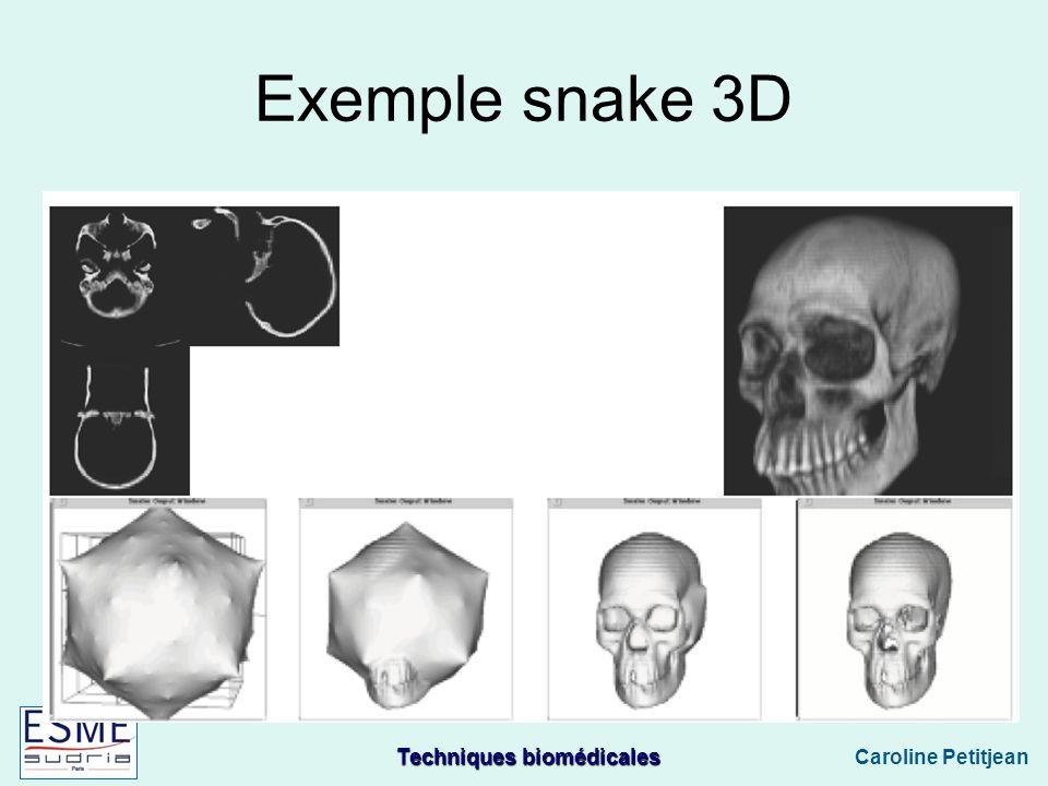 Techniques biomédicales Caroline Petitjean Exemple snake 3D