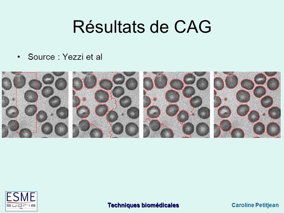 Techniques biomédicales Caroline Petitjean Résultats de CAG Source : Yezzi et al