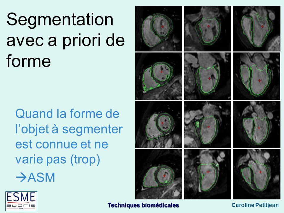 Techniques biomédicales Caroline Petitjean Segmentation avec a priori de forme Quand la forme de lobjet à segmenter est connue et ne varie pas (trop) ASM