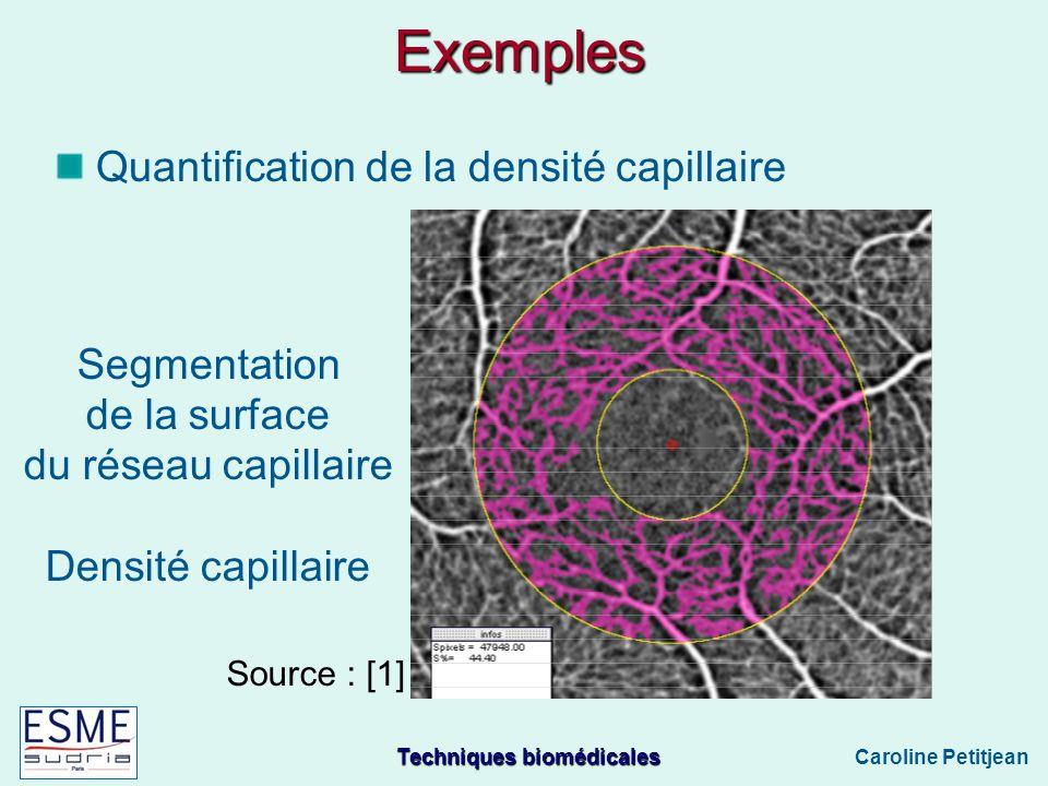 Techniques biomédicales Caroline Petitjean Exemples Quantification de la densité capillaire Segmentation de la surface du réseau capillaire Densité capillaire Source : [1]
