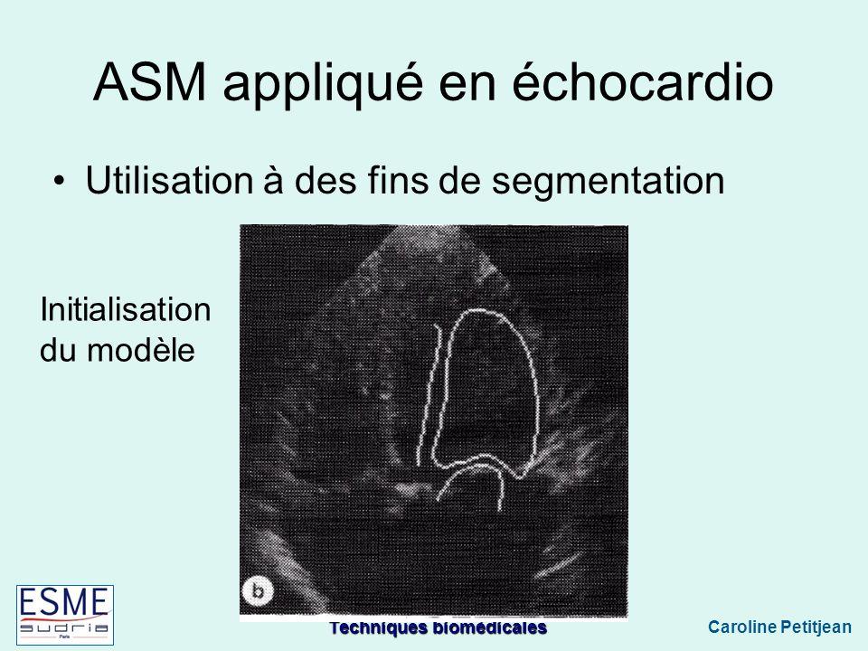 Techniques biomédicales Caroline Petitjean ASM appliqué en échocardio Utilisation à des fins de segmentation Initialisation du modèle