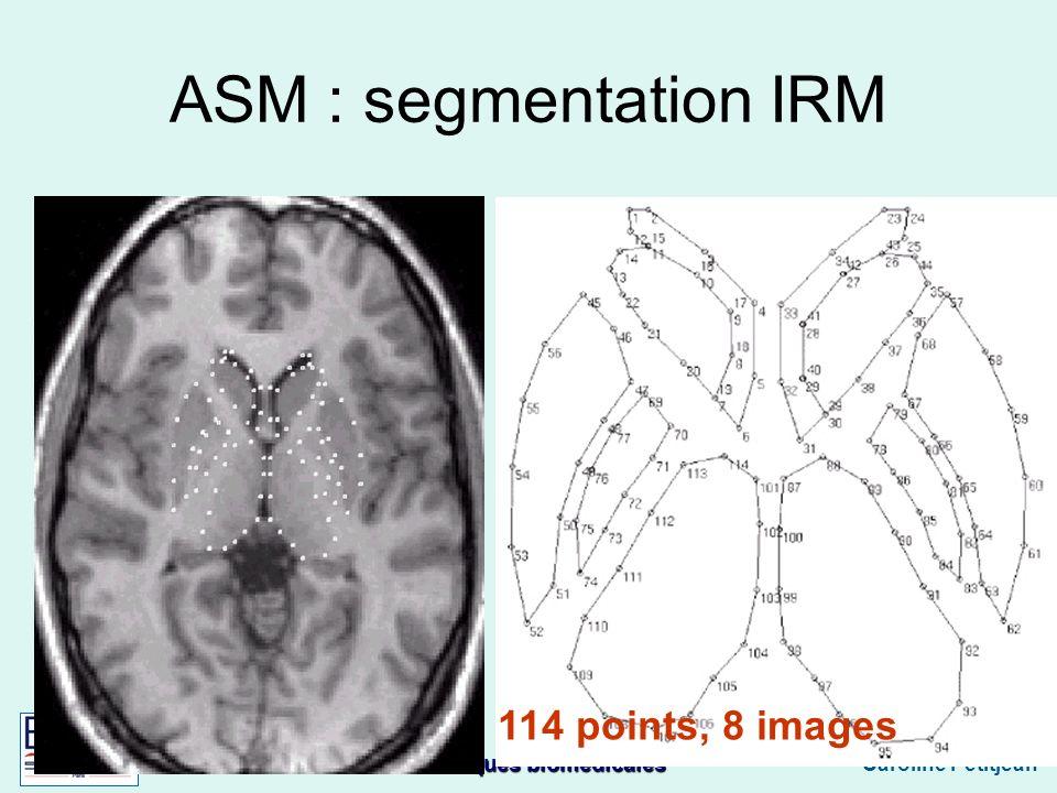 Techniques biomédicales Caroline Petitjean ASM : segmentation IRM 114 points, 8 images