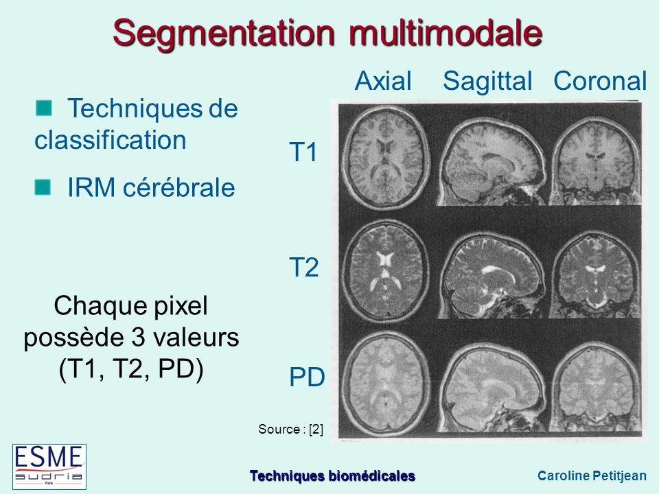 Techniques biomédicales Caroline Petitjean Segmentation multimodale T1 T2 PD Axial Sagittal Coronal Techniques de classification Chaque pixel possède 3 valeurs (T1, T2, PD) Source : [2] IRM cérébrale