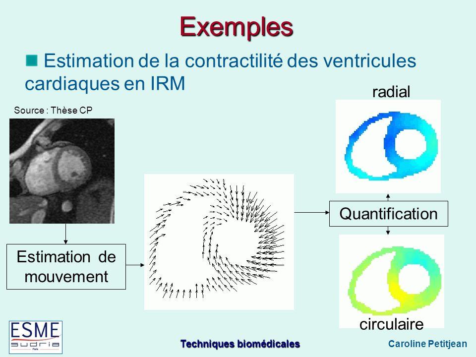 Techniques biomédicales Caroline Petitjean Exemples Estimation de la contractilité des ventricules cardiaques en IRM Estimation de mouvement Quantification radial circulaire Source : Thèse CP