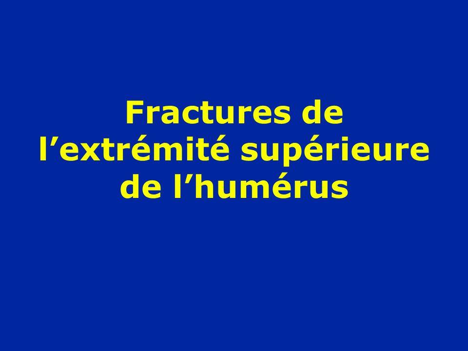 Fractures de lextrémité supérieure de lhumérus
