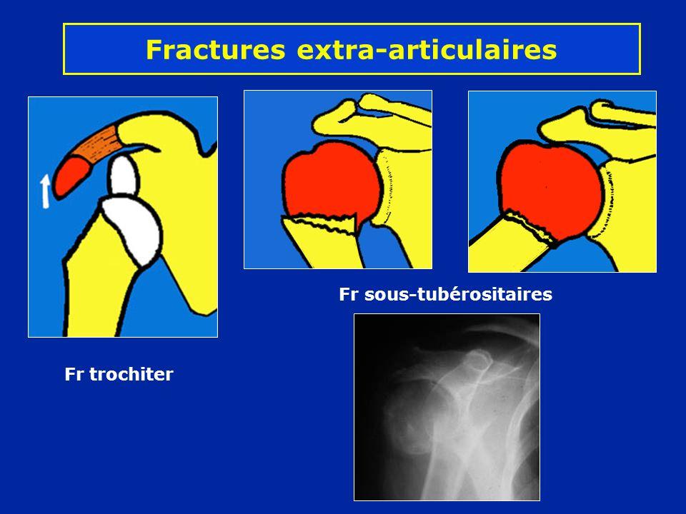 Fractures extra-articulaires Fr trochiter Fr sous-tubérositaires