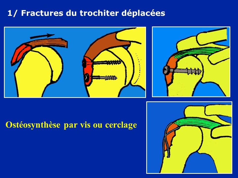Ostéosynthèse par vis ou cerclage 1/ Fractures du trochiter déplacées