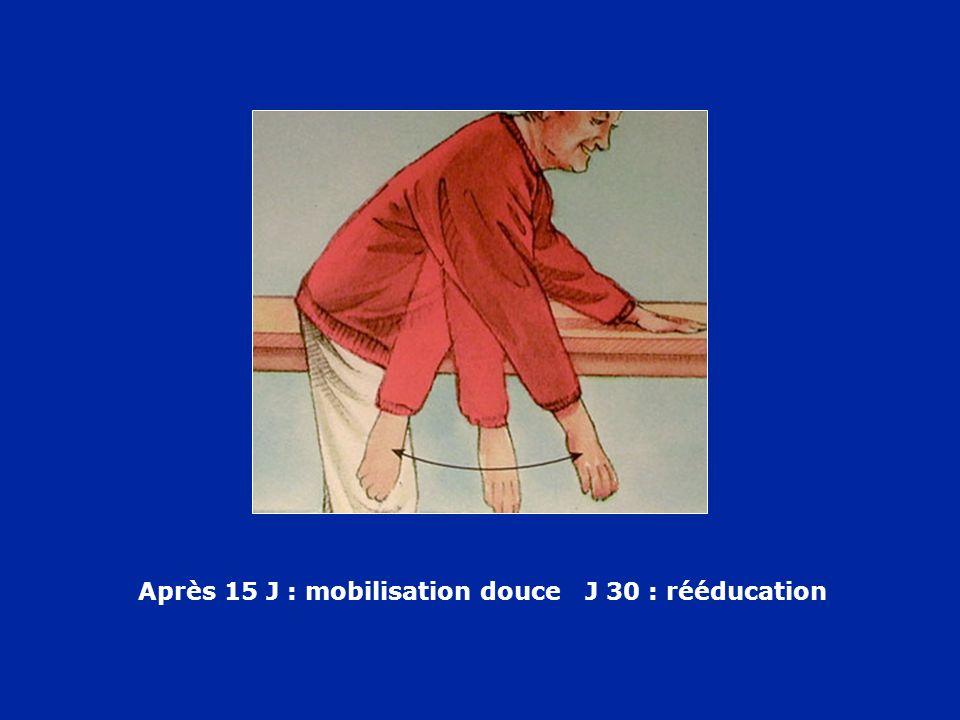 Après 15 J : mobilisation douce J 30 : rééducation