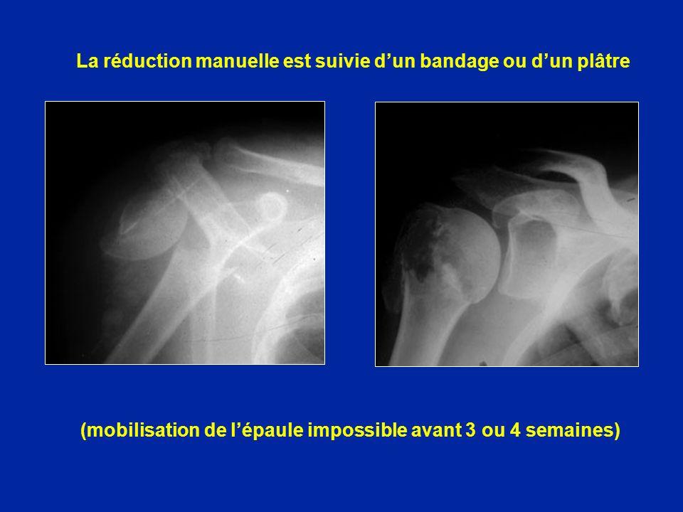 (mobilisation de lépaule impossible avant 3 ou 4 semaines) La réduction manuelle est suivie dun bandage ou dun plâtre