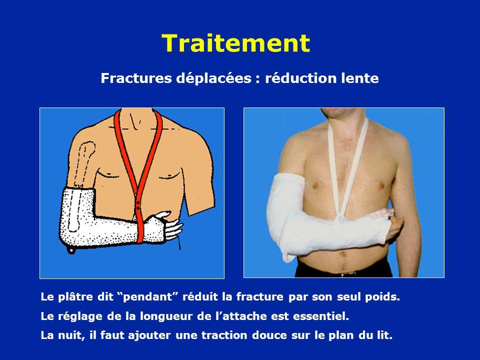 Traitement Fractures déplacées : réduction lente Le plâtre dit pendant réduit la fracture par son seul poids. Le réglage de la longueur de lattache es