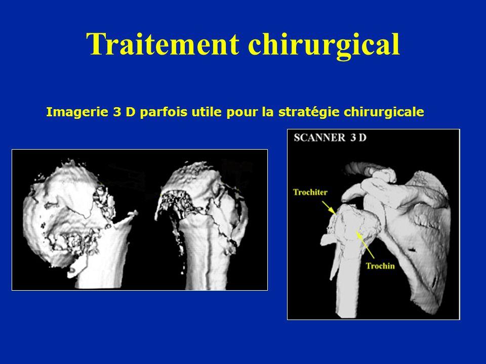 Imagerie 3 D parfois utile pour la stratégie chirurgicale Traitement chirurgical
