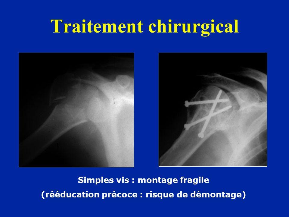 Traitement chirurgical Simples vis : montage fragile (rééducation précoce : risque de démontage)