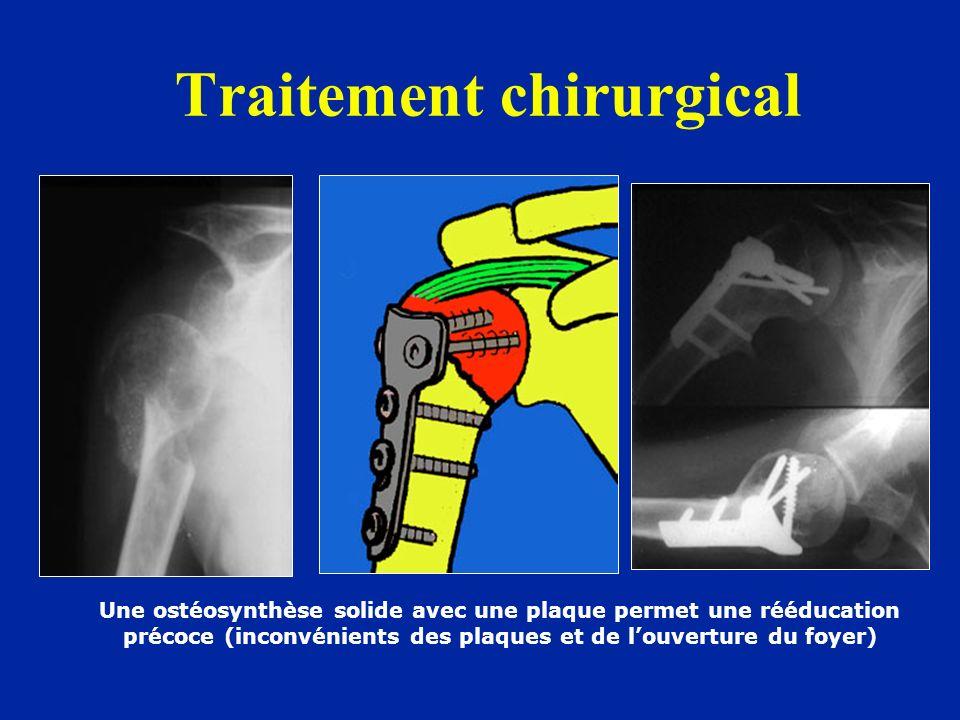 Traitement chirurgical Une ostéosynthèse solide avec une plaque permet une rééducation précoce (inconvénients des plaques et de louverture du foyer)