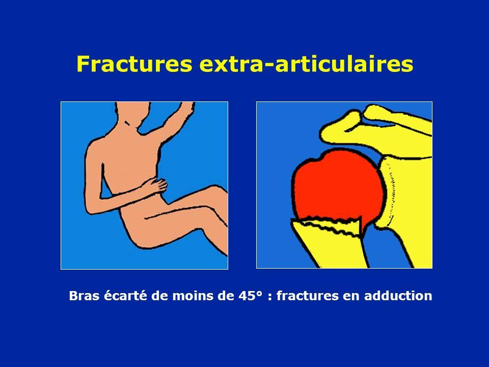 Fractures extra-articulaires Bras écarté de moins de 45° : fractures en adduction