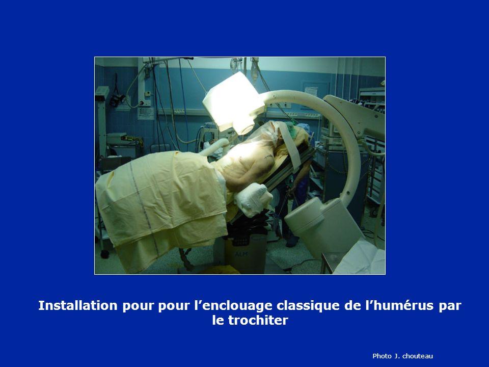 Installation pour pour lenclouage classique de lhumérus par le trochiter Photo J. chouteau