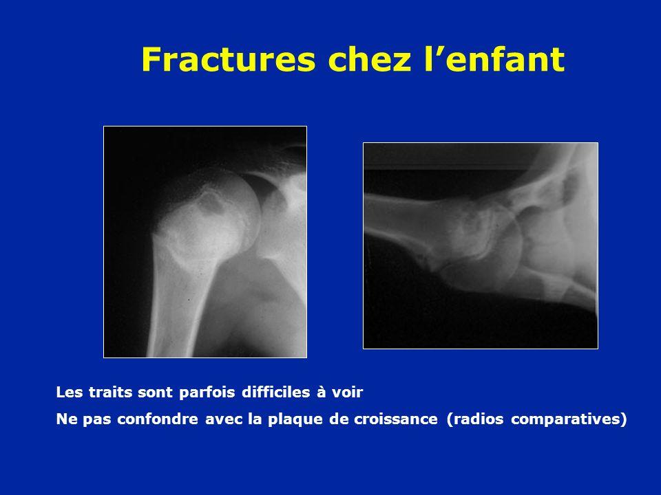 Fractures chez lenfant Les traits sont parfois difficiles à voir Ne pas confondre avec la plaque de croissance (radios comparatives)