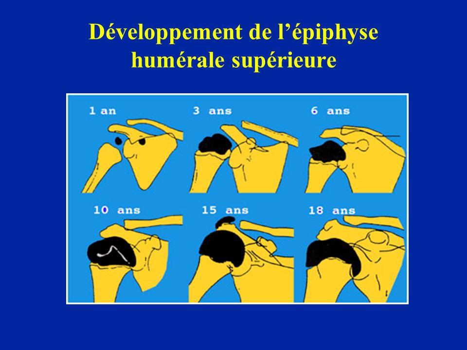 Développement de lépiphyse humérale supérieure