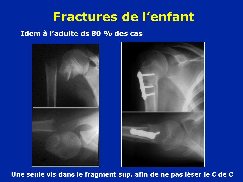 Fractures de lenfant Idem à ladulte ds 80 % des cas Une seule vis dans le fragment sup. afin de ne pas léser le C de C